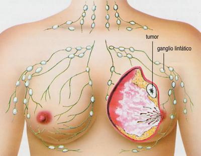Identifican un Gen Vinculado a la Metástasis del Cáncer de Mama