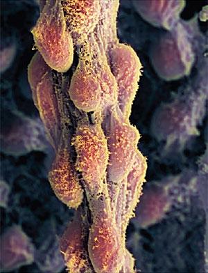 Células madre embrionarias humanas para fabricar injertos de piel